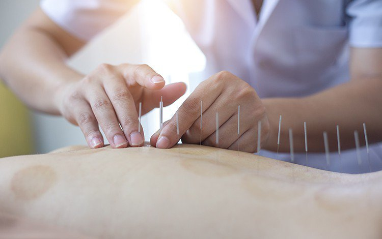 Understanding Acupuncture and Its Benefits